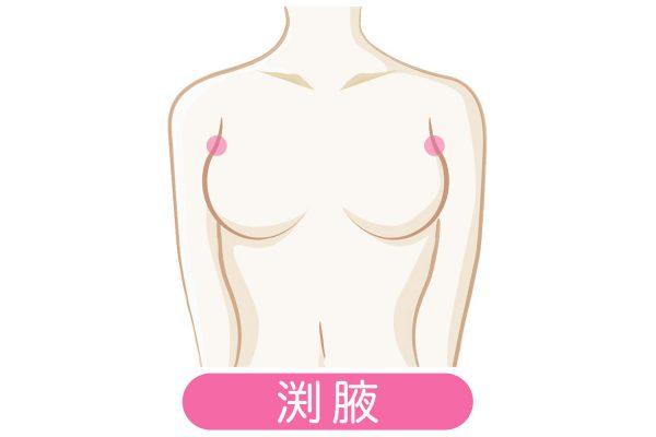 6 e1523259078844 - 垂れた胸に効果的な胸のツボとは?バストアップに有効だった!